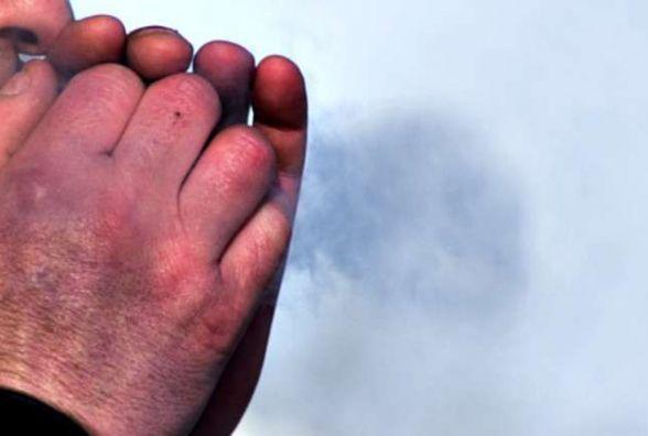 Від негоди та морозів на Житомирщині загинули вже п'ятеро людей