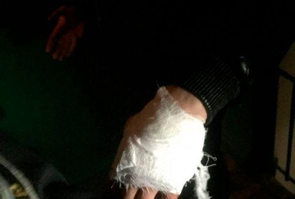 Вночі у Житомирі затримали чоловіка, котрий наніс тілесні ушкодження іншому громадянину