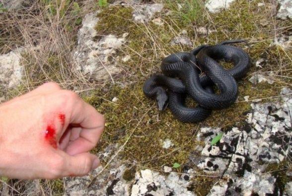 Що робити при укусі змії і як вберегтися від цього