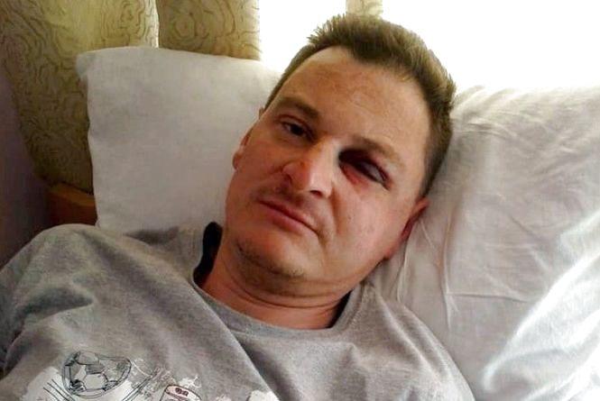 """Знайдено нападників, що побили журналіста газети """"20 хвилин"""""""