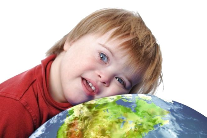 21 березня у Житомирі на Михайлівській відбудеться флеш-моб до Дня людини з синдромом Дауна