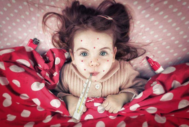 За місяць у Житомирі 140 людей захворіли на кір, переважно не щеплені або з однією дозою вакцинації